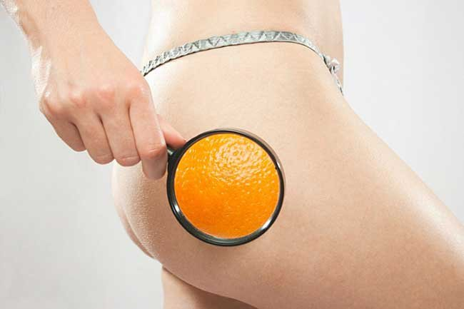 Откуда возникает апельсиновая корка?