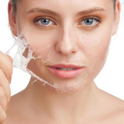 Причины шелушения кожи на лице женщины