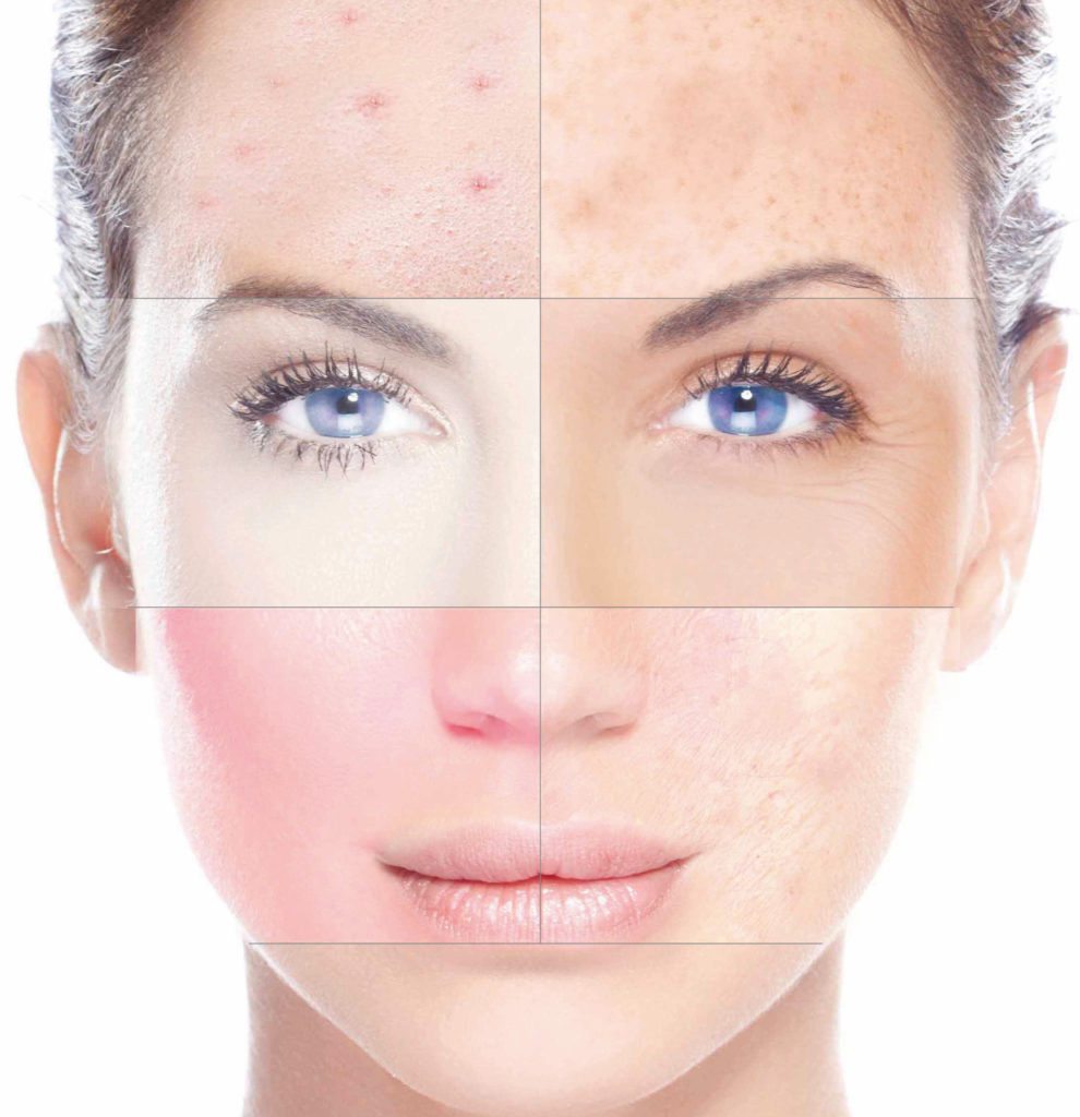 Характеристики жирного типа кожи
