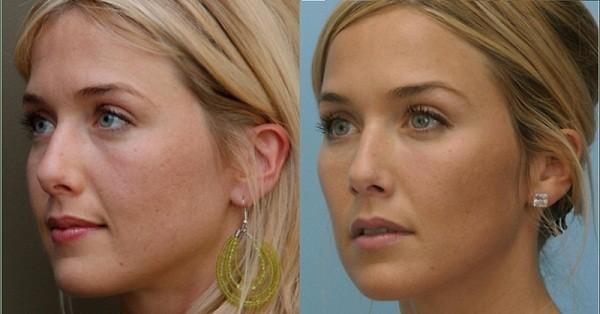 Чек-лифтинг: фото до и после
