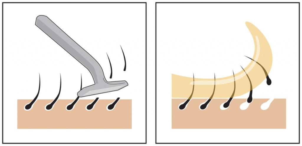 Удаление волос в подмышечных областях и в зоне бикини