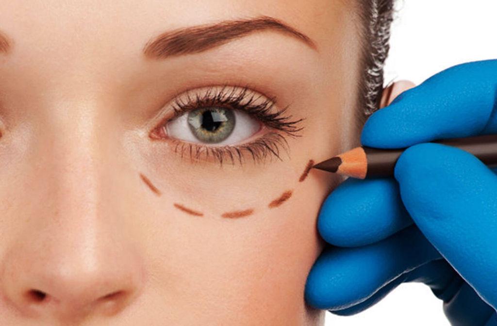 Косметология и пластическая хирургия против синяков под глазами