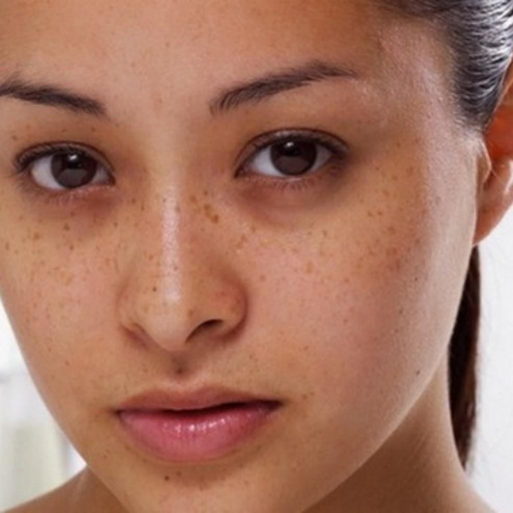 Чем вылечить синяк под глазом в домашних условиях