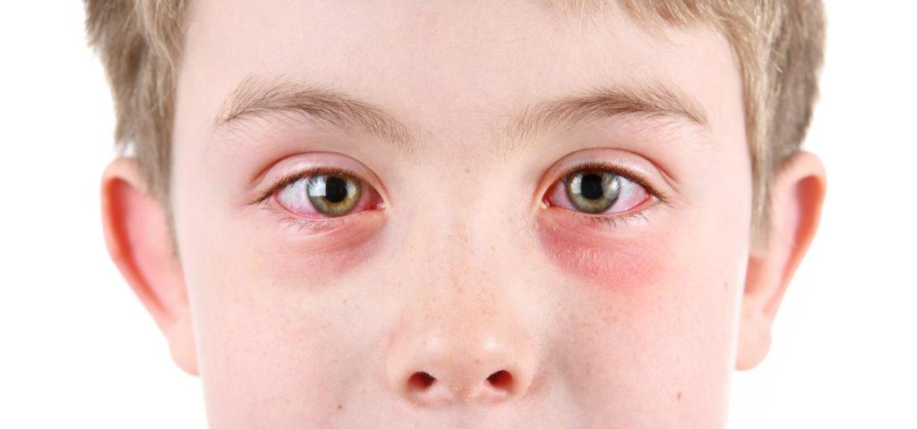 Причины потемнения под глазами у детей