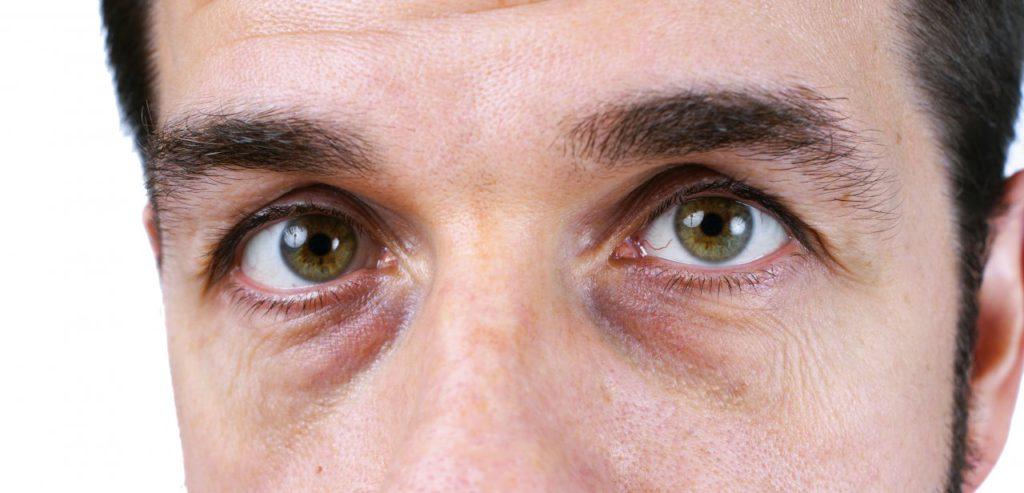 Тёмные круги под глазами у мужчин